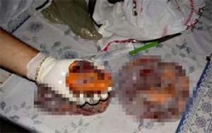 Órgãos encontrados na geladeira. Foto Polícia Civil.
