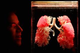 © image/jpeg Exibição de pulmões em Londres